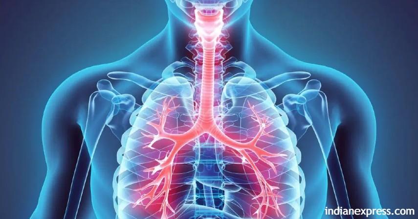 Bronchopneumonia - Jakarta kota terpolusi di dunia