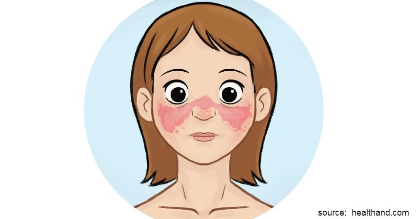 Lupus - Penyakit autoimun