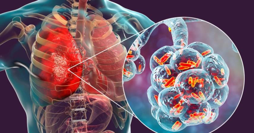 Legionnaires - 6 Penyakit yang Disebabkan dari AC Apa Saja