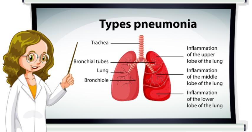 Pneumonia - Kebiasaan Merayakan Tahun Baru Ternyata Bisa Menularkan Penyakit
