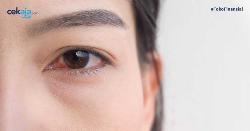 8 Alternatif Obat Mata Merah Paling Efektif