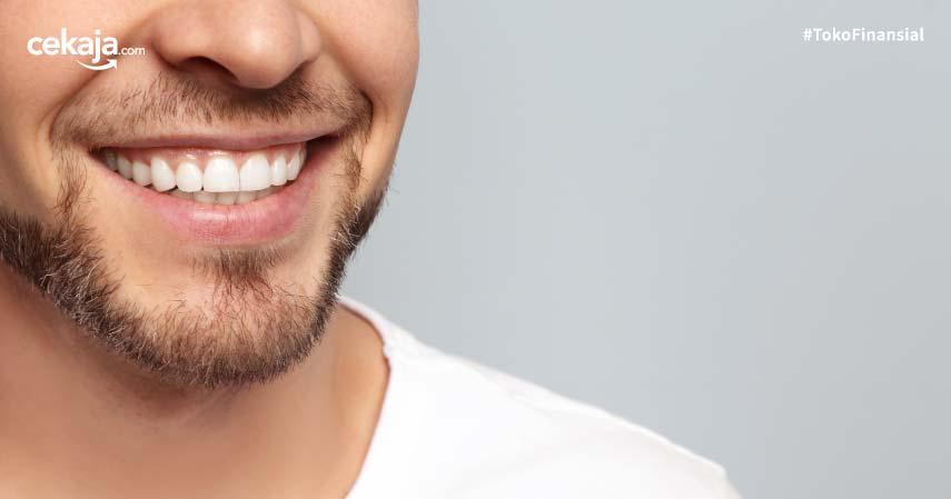 6 Penyebab Karang Gigi Beserta Bahayanya Bagi Kesehatan