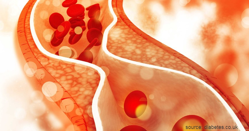 Rendah Kolesterol - Manfaat Telur Setengah Matang dan Bahayanya Bagi Kesehatan