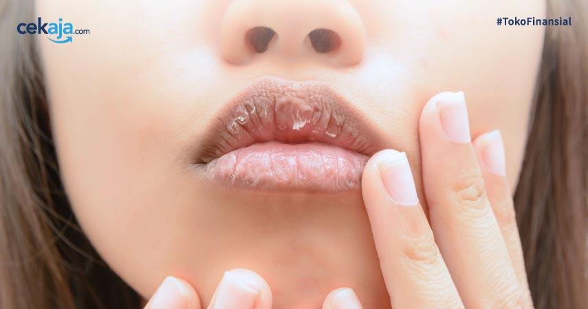 Obat alami untuk bibir pecah-pecah