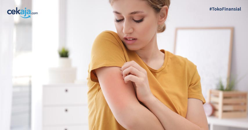 Jenis-jenis alergi pada kulit