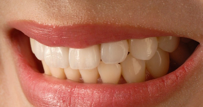 Memakai Veneer - 7 Cara Merapikan Gigi Tanpa Behel Ini Bikin Makan Jadi Menyenangkan!