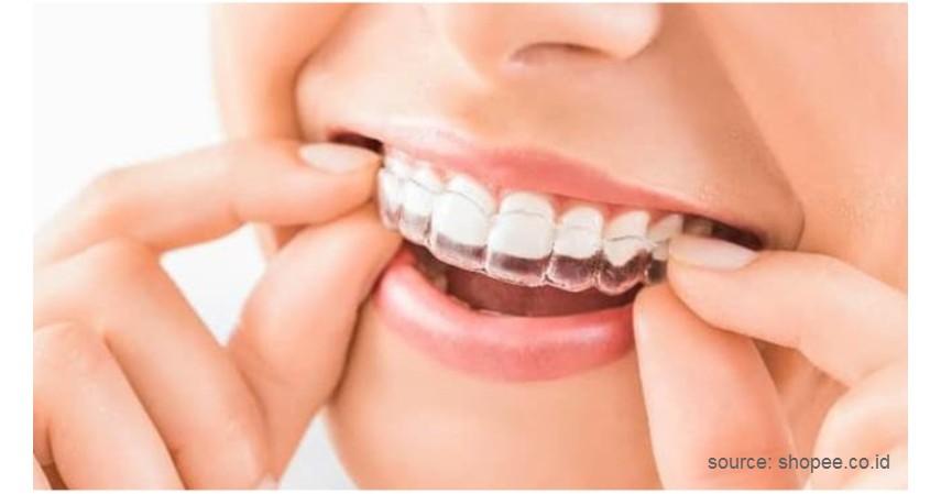 Menggunakan Aligner - 7 Cara Merapikan Gigi Tanpa Behel Ini Bikin Makan Jadi Menyenangkan!