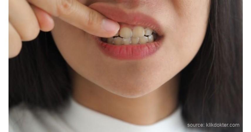 Menggunakan Kontur Gigi - 7 Cara Merapikan Gigi Tanpa Behel Ini Bikin Makan Jadi Menyenangkan! (1)
