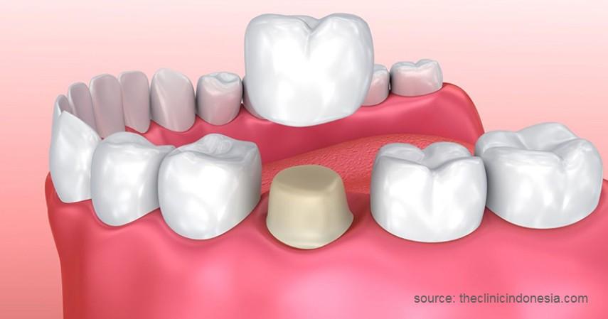 Menggunakan Mahkota Gigi - 7 Cara Merapikan Gigi Tanpa Behel Ini Bikin Makan Jadi Menyenangkan!
