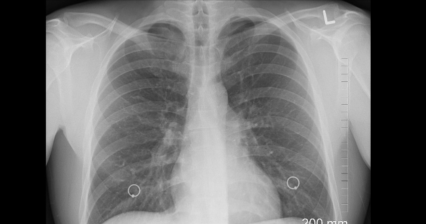 Paru-paru (Rp4,2 Miliar) - 9 Daftar Harga Organ Tubuh Manusia yang Paling Banyak Diperjualbelikan di Pasar Gelap