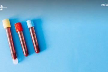 Mengenal Tipe Warna Darah saat Menstruasi, Seperti Apa yang Normal?