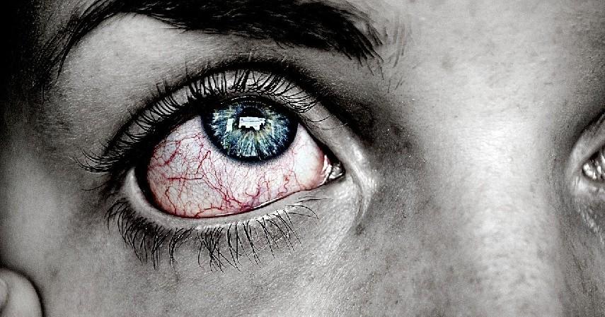 Mata terasa perih - 5 Bahaya Extension Bulu Mata