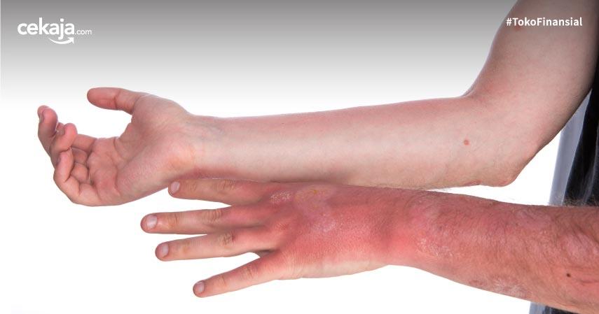 9 Cara Atasi Kulit Terbakar Matahari dan Tips Kembalikan Warna Kulit Asli