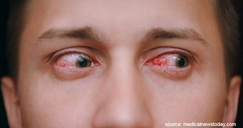 Iritasi pada mata - Dampak Negatif Mewarnai Rambut