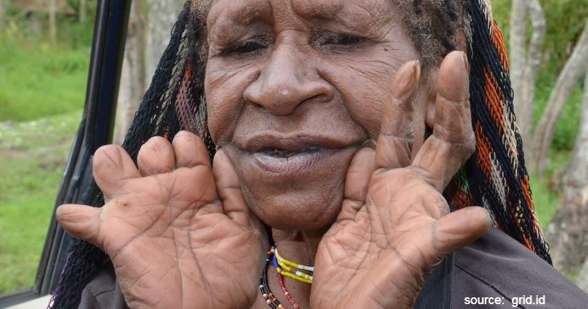 Tradisi Paling Ekstrim di Indonesia - Tradisi Iki Palek Papua