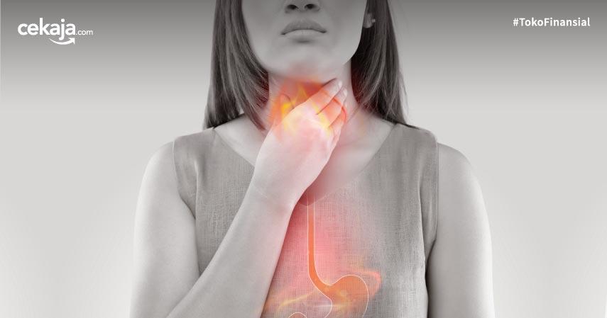8 Cara Mengatasi Heartburn yang Aman dan Patut Dilakukan Penderita Asam Lambung