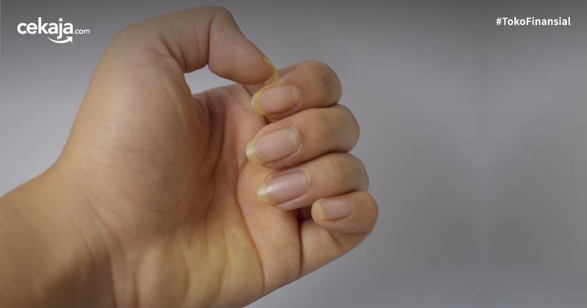 7 Penyebab Kuku Kuning dan Kiat Mengatasinya Dengan Mudah