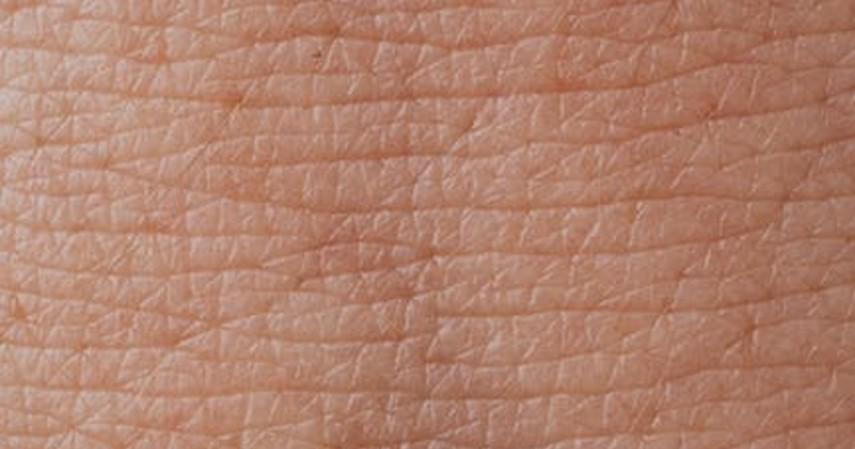 Penyebab Jamur Pada Kulit, Beserta Langkah Pencegahan dan Cara Pengobatannya - Apa itu Jamur kulit
